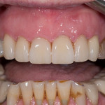 Front Crowns - Case 1