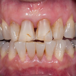 Front Crowns - Case 2