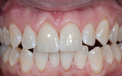 Front Crowns - Case 3