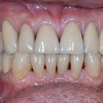 Full Mouth Rehabilitatation - Case 1