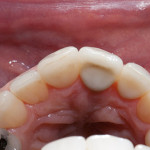 Missing Tooth - Case 1