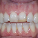 Porcelain Veneers - Case 1